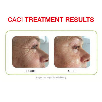 CACI Treatments